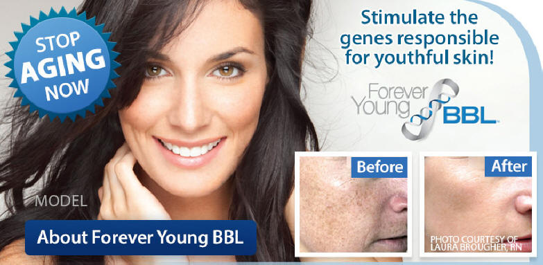BBL Forever Young Calgary Alberta